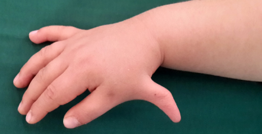 What is Fanconi Anemia and how can it be treated?